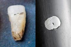 Vassa stenar ger svåra skottskador